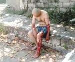 Ataca 'coco' a pescador furtivo