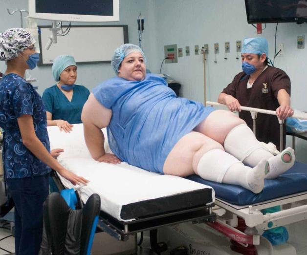 Obesidad, creciente desafío para la salud