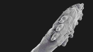Así es el microscópico ser que se reproduce en nuestro rostro