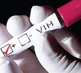 Celebran día del VIH-Sida el  'mal del siglo'