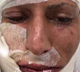 Jürgen Damm sufre quemaduras tras accidente con pirotecnia