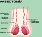 Vasectomía sin bisturí método de planificación permanente