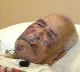 Un mexicano de 92 años fue golpeado con un ladrillo en la cara