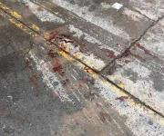 Herida una mujer por bala pérdida tras disparos de grupos armados