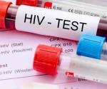 Confirman segundo caso curado de VIH