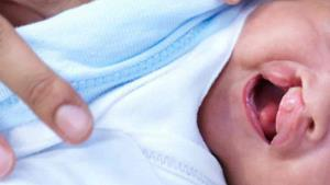 Invitan a donar para cirugías de labio y paladar hendido